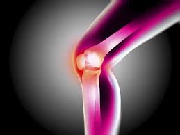 Pengobatan Osteoarthritis